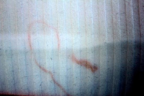 Glenn Hotel, Autograph Collection: Stains on the sheets