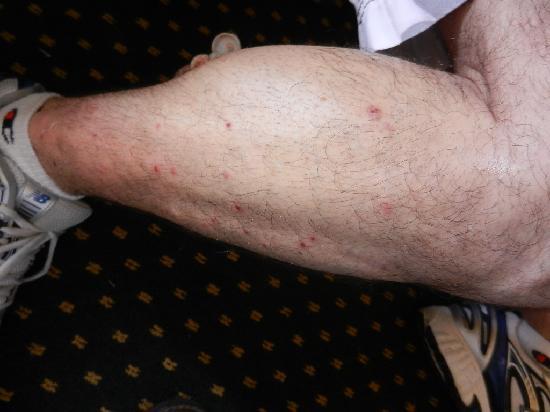 BEST WESTERN Key Ambassador Resort Inn: Bedbug bites