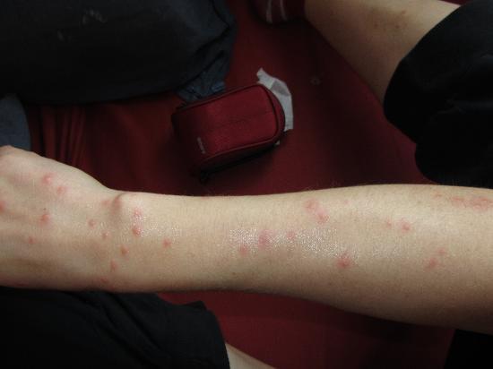 Adeba Hotel: pogryzienia po pluskwach / bedbugs bites