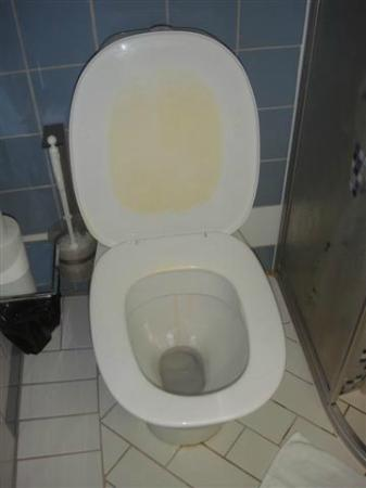 Hotell Alfred Nobel : Stained toilet seat - yuk