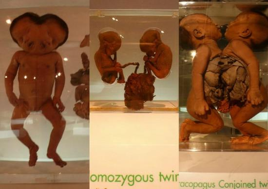 Siriraj Medical Museum: poor babies
