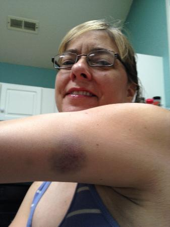 Hampton Inn Richfield: Bruise from hitting hand bar in the Tub at Hampton Inn.
