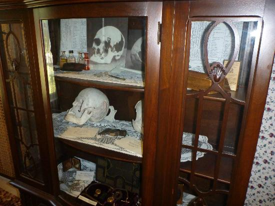 Lizzie Borden Bed and Breakfast: china cabinet with models of crushed skulls of Father and Step Mother