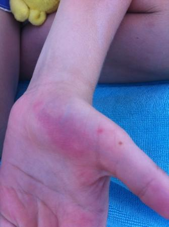 Mitsis Blue Domes Resort & Spa: bruised hands after slipping on missing tiles