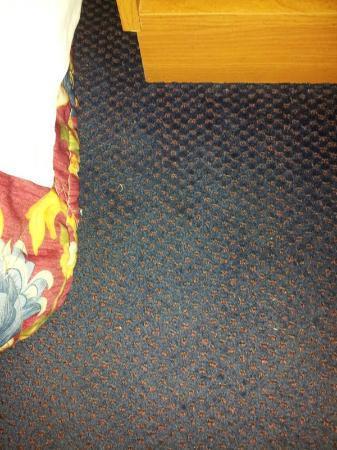 Super 8 Stroudsburg: more toenails