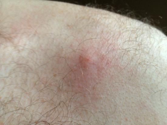 بارك فيو هاوس هوتل - جيست هاوس: bed bug bite 