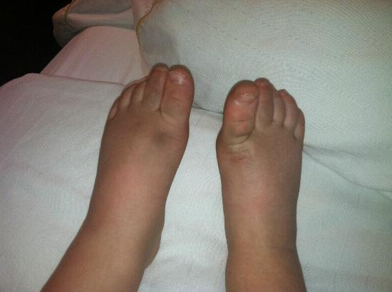 "Holiday Inn Express Colby: My baby's feet after crawling on the ""newly renovated"" room floor for 30 min."
