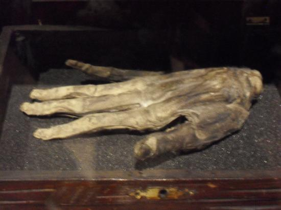 hand of glory (if you want to know more visit whitby museum)