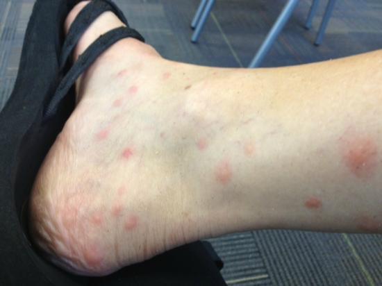 Salisbury, MA: bedbug bites ugh!