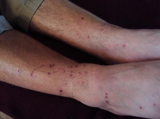 SeaPort Marina Hotel: These are the bites on my husband's legs after 1 night here!