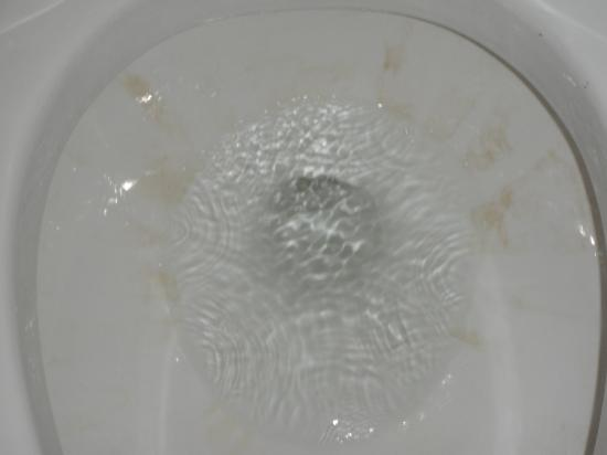 Calypso Resort & Towers: stained toliet in master