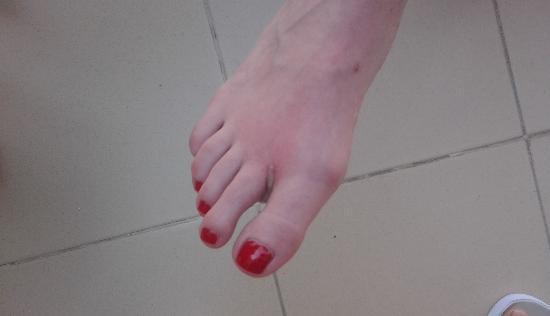 Myoka Lotus Spa: Scalded Foot After Spa Treatment