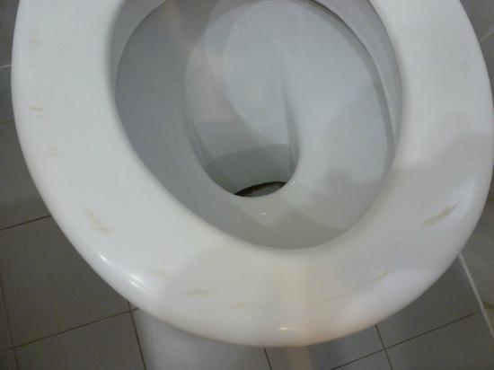 Bitzaro Palace Hotel: Marks on seat + brown down toilet