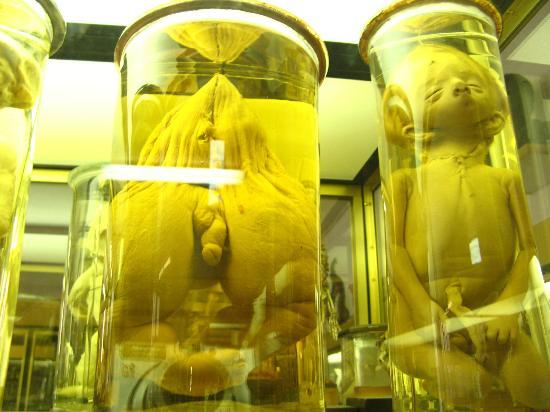 Musée Dupuytren Paris : Exemple de spécimens conservés dans des bocaux