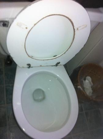The Surry Inn: Inodoro anti higiénico a nuestra llegada / Unsanitary toilet upon arrival