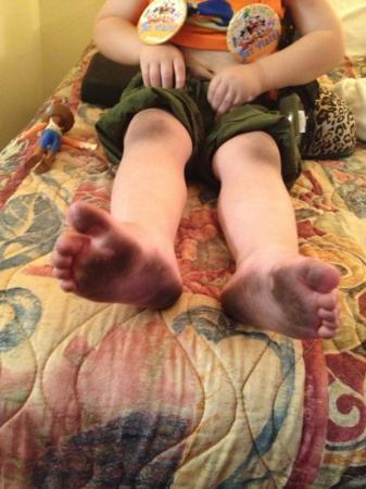 Days Inn Anaheim Near Convention Center: bottom of his feet & knees dirty from carpet