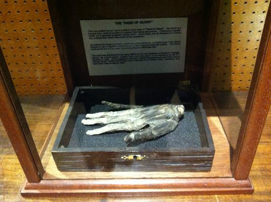 Whitby, UK: A REAL hand of glory!