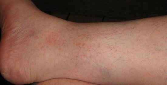 Permethrin Cream For Bed Bugs