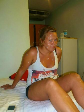 Unico Express Hotel: friend covered in antiseptic cream