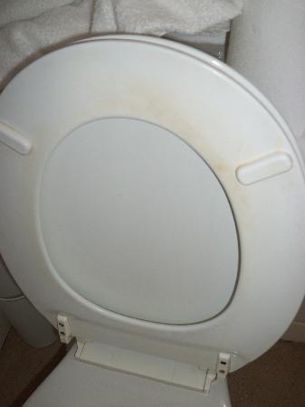 Tregenna Hotel: DISGUSTING TOILET SEAT