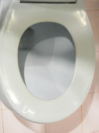 Mango-Ray Resort: discoloured toilet seat - takes a long time for such a color change...