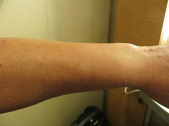 Motel 6 Dania Beach: Bug bites on left hand