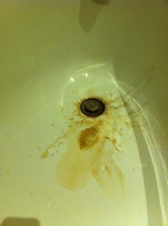 Point Village Hotel:                   Stained chipped unusable bath with no shower