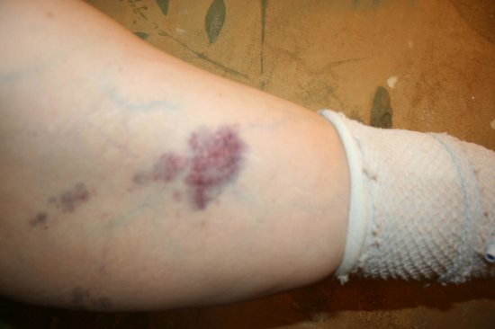Minerals Hotel:                   my injury along my pic line