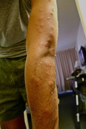 Hokele Suites Waikiki:                                                       Bed bug bites all over the arms, neck, and