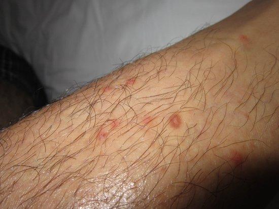Barcelo Puerto Vallarta: Bug Bites
