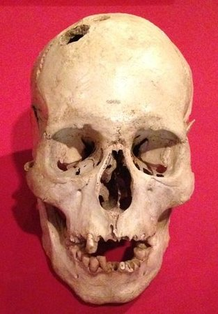 Wellcome Collection: trepanned skull