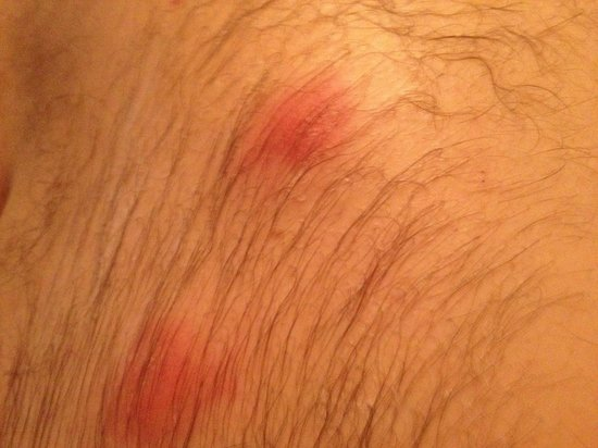 Foot of the Mountain Motel: Bed bug bites on my back