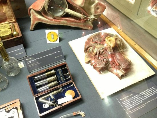 Museum of the History of Science: Wax mould of facial nerves & breast pump