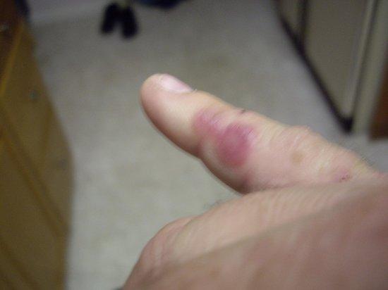 Legacy Inn : finger