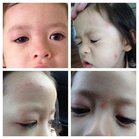 คาเมรอน ไฮแลนด์ รีสอร์ท: Mosquito bites on daughter's face, during our stay may 2013