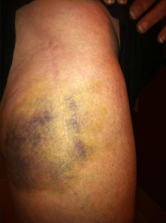 Park International Hotel: Bruise after four days