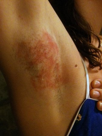 Natura Cabana Boutique Hotel & Spa: Result of Spa Experience - untrained waxing services, photo taken 3 days after injury