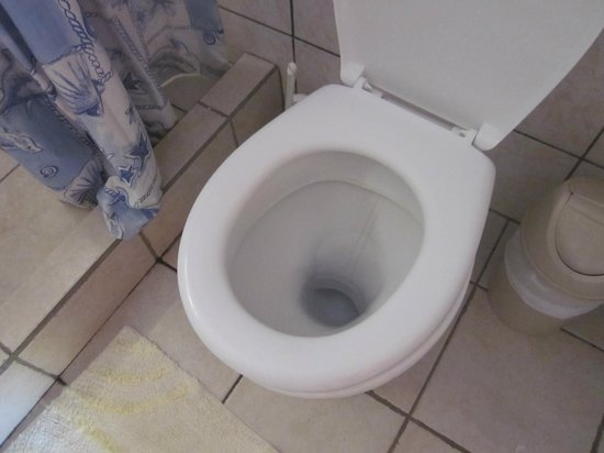Toro Blanco Resort: Stained toilet