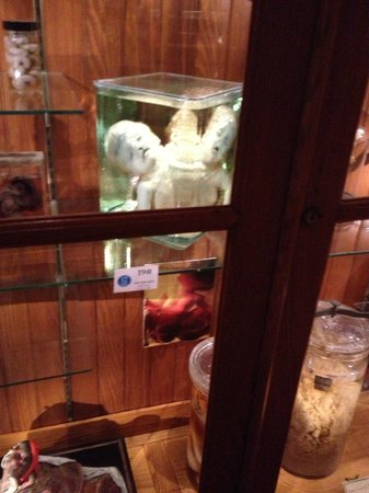 Mutter Museum: What's in the jar?