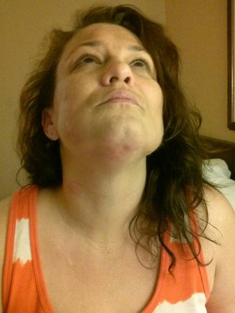 Extended Stay America - Fort Worth - City View: Bed bug bites under my chin