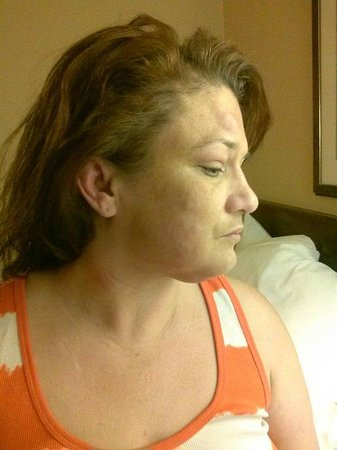 Extended Stay America - Fort Worth - City View: Bed bug bites on my face