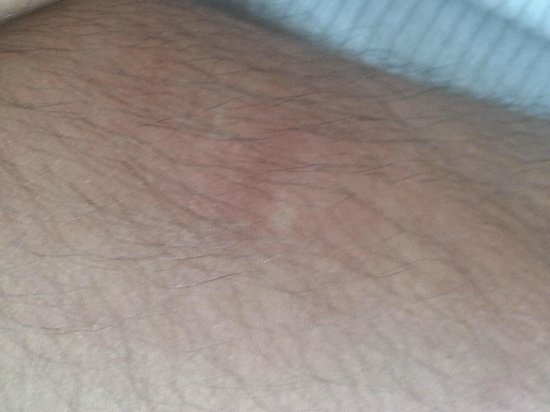 Baymont Inn & Suites Casper East: Bed bug bites on my husband