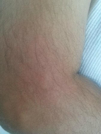 Baymont Inn & Suites Casper East: Bed bug bite on my husband's elbow