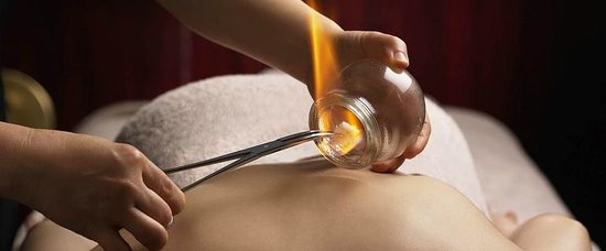Chuan Spa: Traditional Chinese Medicine Treatment - Cupping