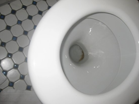 Hotel Excelsior: stains in toilet