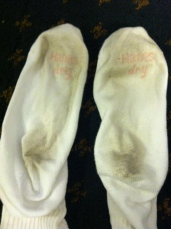 Wingate by Wyndham Atlanta/Six Flags Austell: Socks after walking on carpet