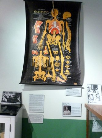 Oregon State Hospital - Museum of Mental Health : Osteology