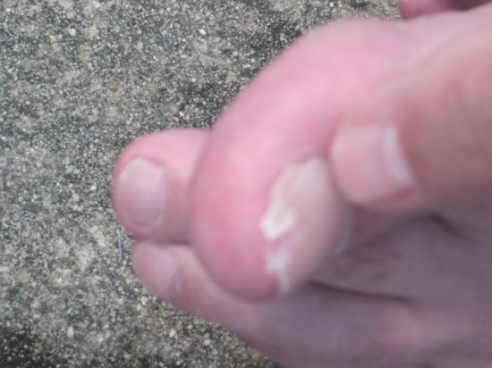 Castle in the Sand Hotel: BAD TOE