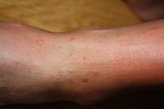 Jaz Mirabel Club: Bed bugs bites