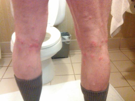 Hilton Garden Inn Auburn/Opelika: Photo of my husband's legs after first night